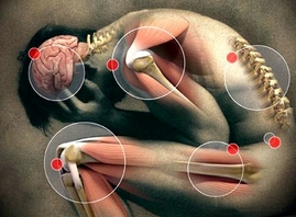 fibromyalgia treatment nz